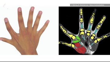 People with Six Fingers Have the Upper Hand in Dexterity, Study Finds