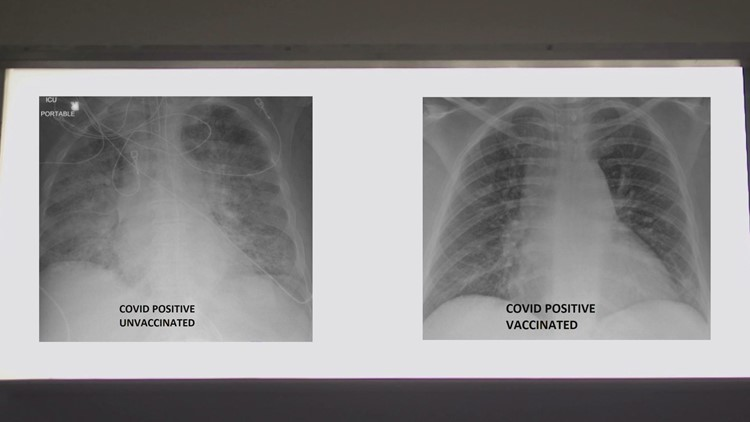 COVID-19 lung x-rays show difference vaccination can make