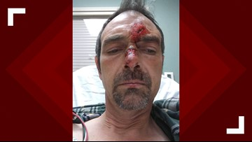 SUV runs over Boise cyclist then speeds off, leaving a trail of damage and medical bills