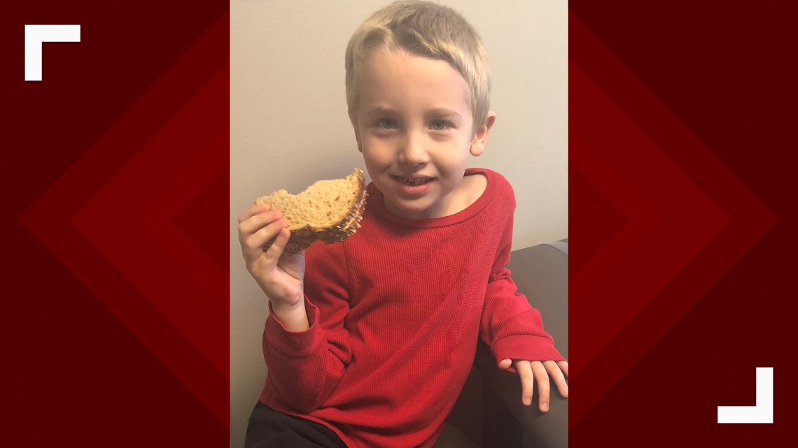 Food allergies could a thing of the past with help from a Boise group