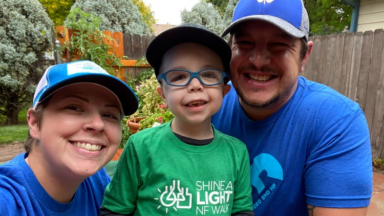 Kuna boy with a rare genetic disorder is celebrating a big birthday, and the whole community is invited