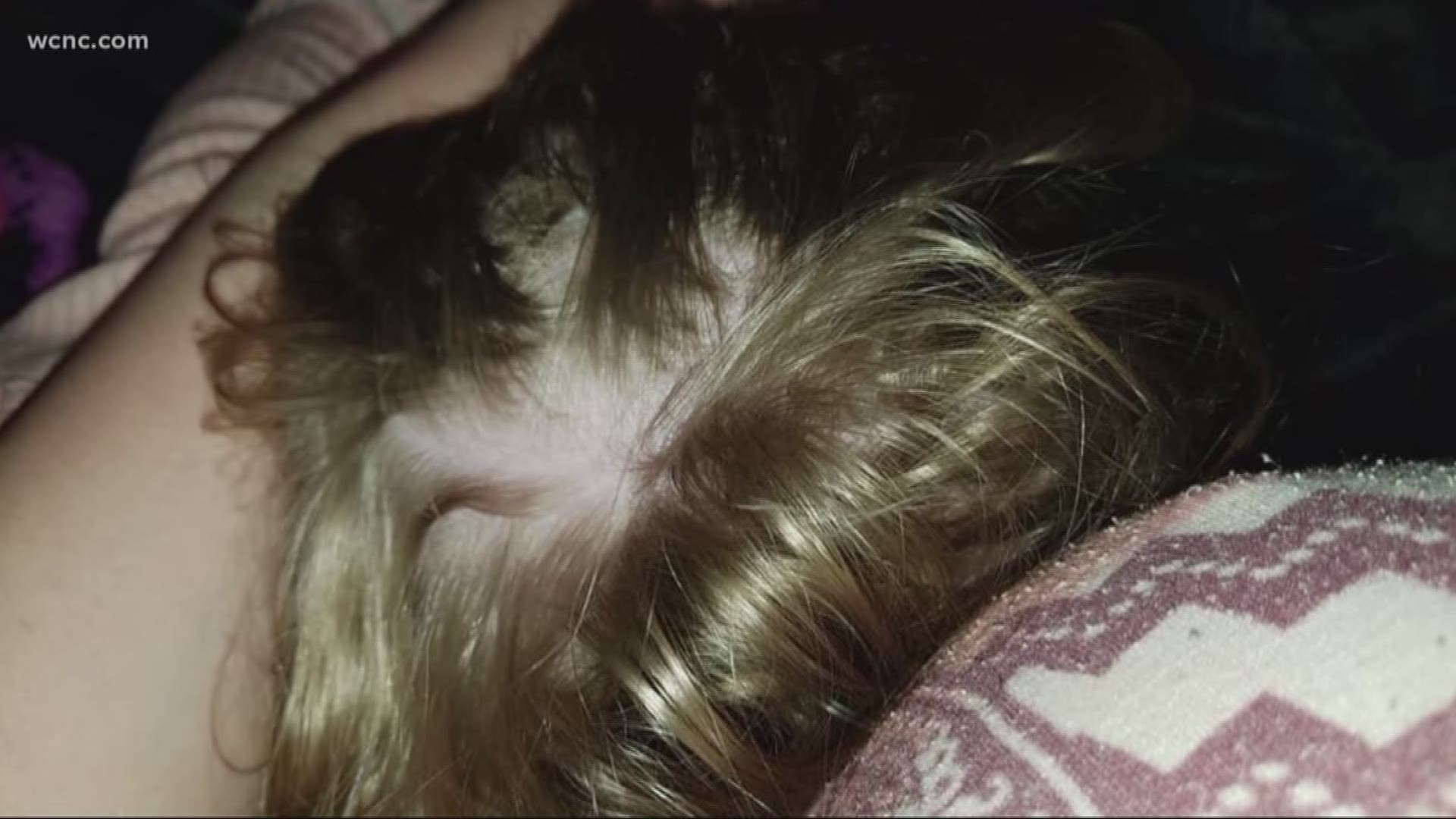 Nc Woman Sued For Blaming Hair Care Company For Hair Loss Scalp Wounds Ktvb Com